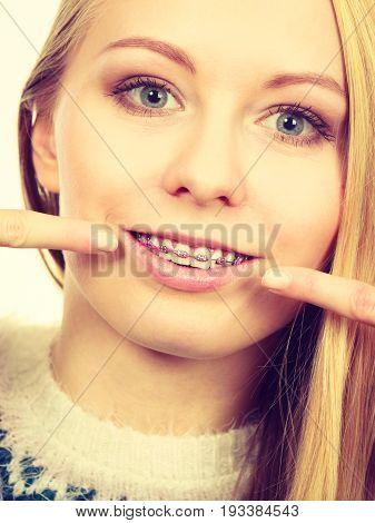 Happy Woman Showing Her Braces On Teeth