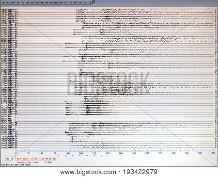 Seismological Activity Computer Monitor