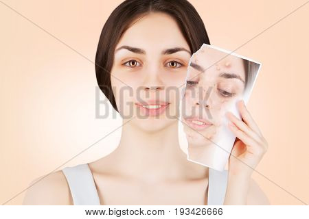 multi-racial female brunette releases her skin from pimples