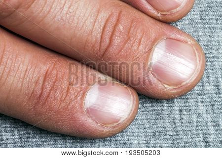 Mens fingers and nails in bad condition close up