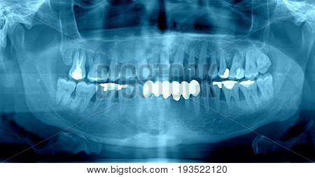 Dental x-ray , close up image .