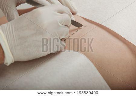 Surgeon Preparing To Make An Incision