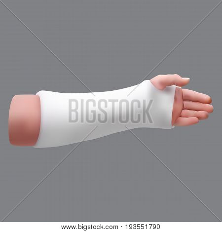 Gypsized broken arm. Isolated realistic object. Vector illustration