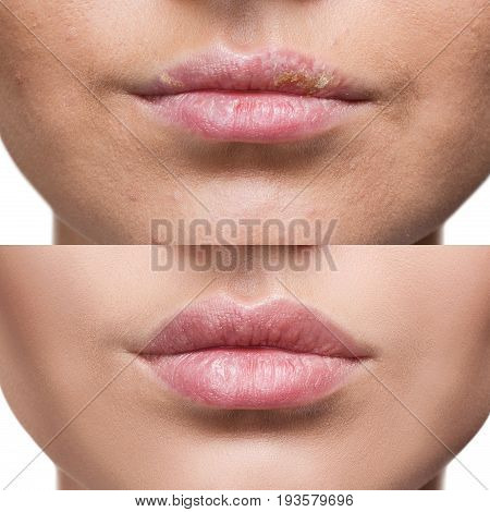 Female lips with herpes sore before and after treatment.