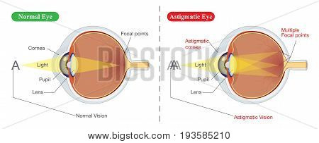 The different between vision of normal eye and Astigmatic. Illustration about common eye problem.