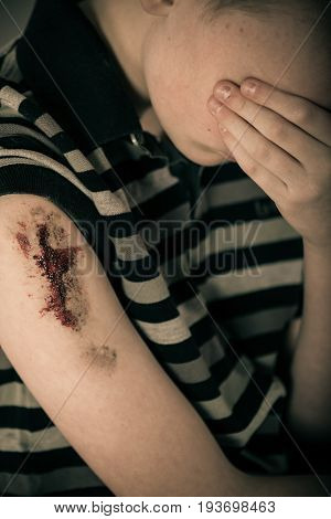 Unhappy Male Child With Bloody Bare Arm