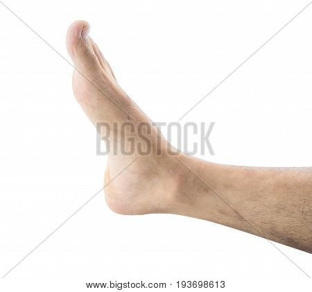 blemish on the skin leg. macro isolated on white background.
