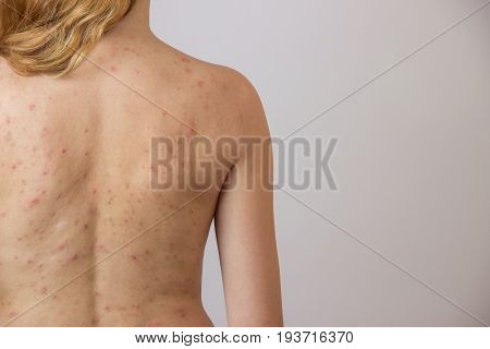 Young girl with acne with red and white spots on the back