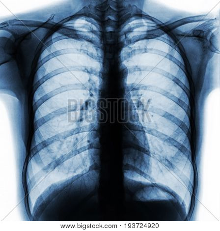 Film chest x-ray PA upright show normal human chest .