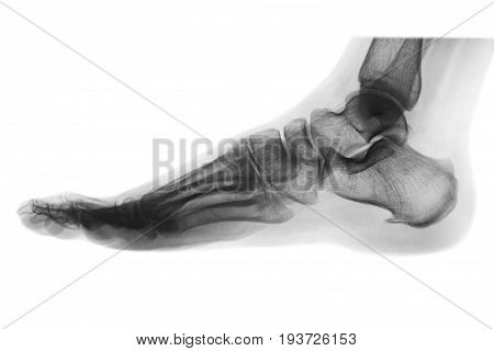 X-ray normal human foot . Lateral view . Invert color style .