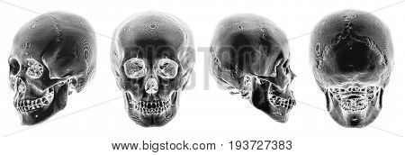 3D CT scan of human skull . Multiple view . Invert color style .
