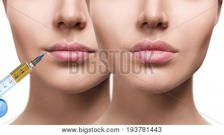 Woman before and after lips filler injections. Beautician procedure concept.