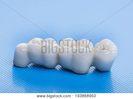 ceramic crowns - in a dental laboratory