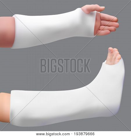 Plastered leg and arm. Treatment of a broken leg and broken arm. Medicine and health. Isolated realistic object. Vector illustration
