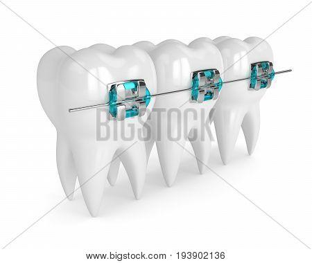 3D Render Of Teethh With Braces