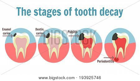 The Stages Of Tooth Decay Infographic. Dental Toothache Symbol
