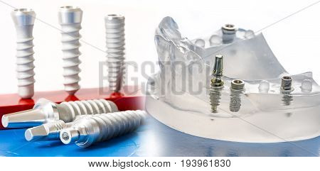 dental implants - a dental model close up
