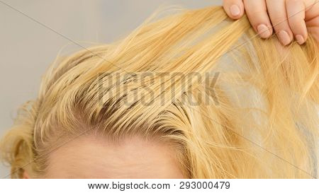 Unrecognizable Woman Showing Oily Roots On Her Blonde Hair. Female Having Greasy Scalp.