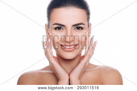Smiling Woman With Lifting Arrows On Face. Concept Of Skin Lifting