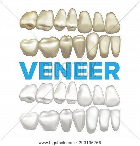 Veneer Vector. Dental Veneer Concept. Medical Banner Design Element. Tooth Before And After. Illustr