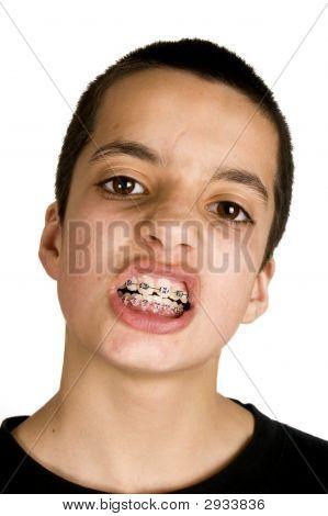 Teenage Showing His Dental  Braces