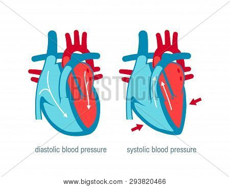 Diastolic And Systolic Blood Pressure. Vector Illustration In Flat Style For Medical Websites, Infog