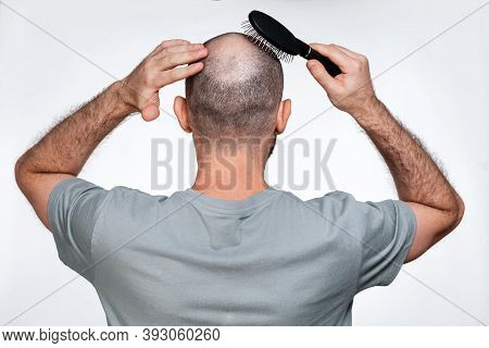 A Man Holds His Hands To His Bald Head, Combing Alopecia Foci With A Comb. Rear View. The Concept Of