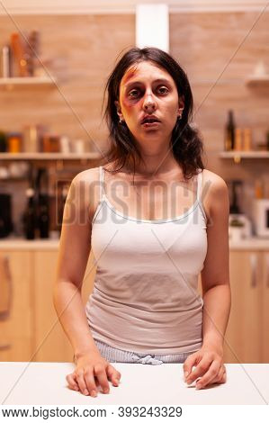 Traumatised And Beaten Young Woman Of Aggressive And Alcoholic Husband. Violent Aggressive Husband A