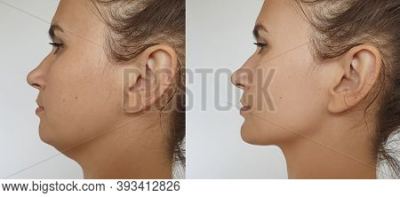 Double Chin In Women Before And After Treatment