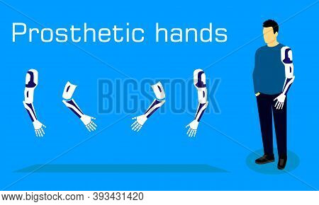 Prosthetic Hands And Prosthetics. Man With A Prosthesis Stands