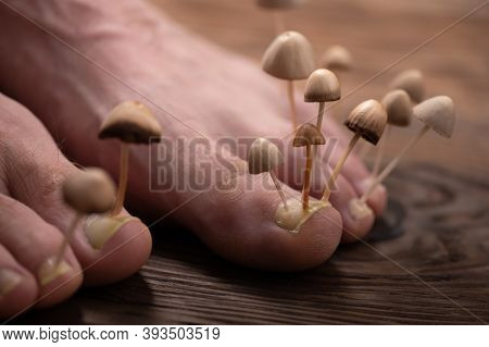 Fungi Grow From The Nail Plates On The Feet. Concept Of Nail Fungus, Skin And Nail Infections. Two L