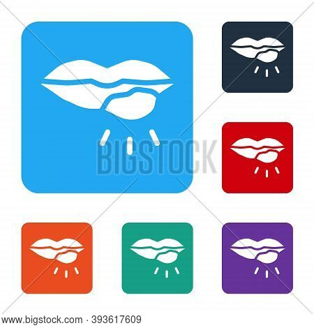 White Herpes Lip Icon Isolated On White Background. Herpes Simplex Virus. Labial Infection Inflammat