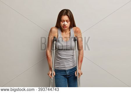 Traumatized Upset Woman Has Various Of Bone Breakages And Bruises After Falling From Attraction, Spe