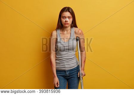 Photo Of Woman Victim Of Accident Has Nose Breakage, Poses With Crutch, Cannot Walk By Herself, Gets
