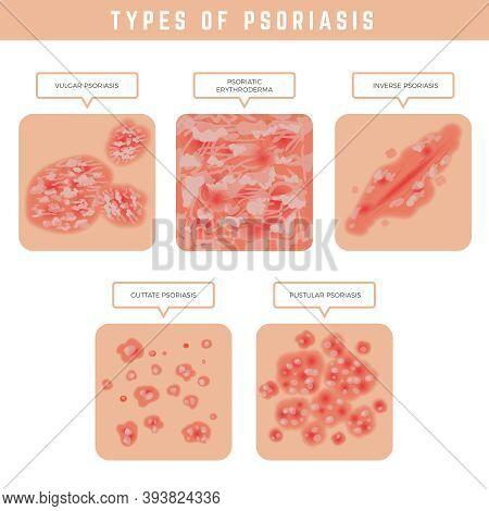 Psoriasis Types. Skin Problems Close Up Medical Illustrations Vector Set. Psoriasis Problem, Eczema