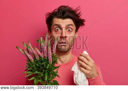 Frustrated Ill Man Sneezes Because Of Allergy On Pollen, Holds Handkerchief And Rubs Nose, Being All