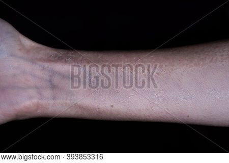 Cropped View Of Female Arm With Dead, Exfoliated Skin Isolated On Black Backgound. Side Effects Of M