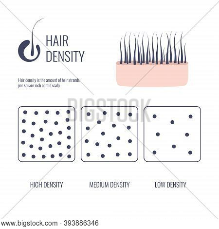 Hair Density Types Chart Of Low, Medium, High Strand Volume
