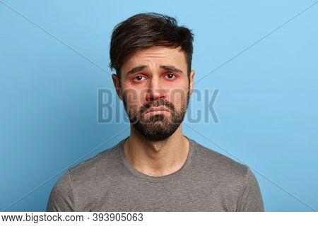 Miserable Displeased Man Has Sick Look, Red Swollen Eyes, Smirks Face, Suffers From Conjunctivitis,