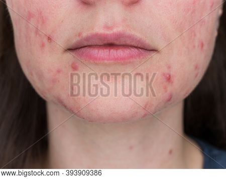 Papulopustular Rosacea, Close-up Of The Chin And Lips Of A Patient In The Stage Of Exacerbation Of T