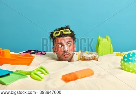 Head Of Man With Sunburn On Face, Red Painful Skin, Looks With Shock Aside, Notices Strange Thing On