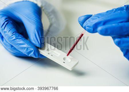 Scientist Or Doctor Placing Blood Sample On Rapid Diagnostic Rest Rdt Cassette,medical Technician Pe