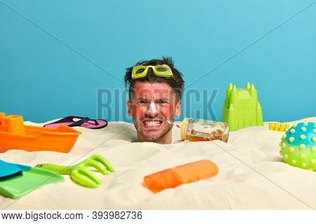 Irritaed Male Tourist Clenches Teeth From Pain, Being Annoyed With Sunburn, Redness Of Skin, Drinks