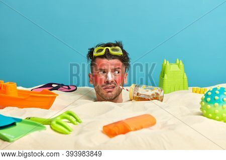Outdoor Shot Of Unhappy Young Man Got Sunburn In Very Hot Summer Day, Drinks Cold Beverage, Applies