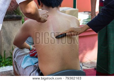 The Teacher Demonstrate Guasa Technique Which Is The Alternative Medicine  For Skin Detoxifying On M
