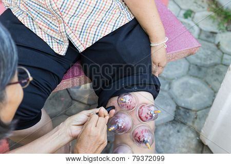 Leg Skin Vacuum And Phlebotomy, The Chinese Alternative Medicine