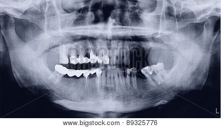 Panoramic x-ray of the mouth both the upper and lower jaws for oral surgeries and implantology.