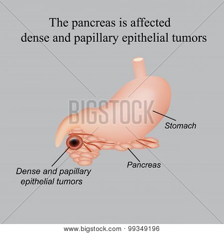 The pancreas is affected dense and papillary epithelial tumors. Vector illustration on a gray background. poster