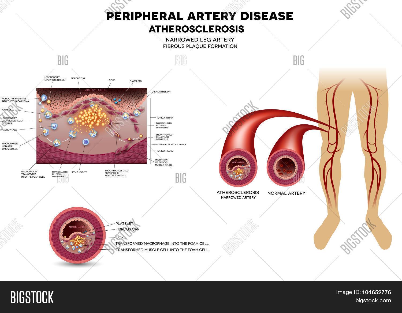 Leg Artery Disease, Vector & Photo | Bigstock
