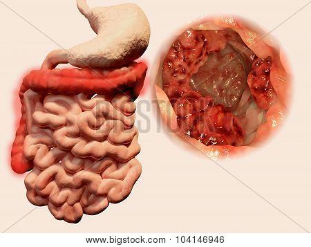 Tumor in the intestine
